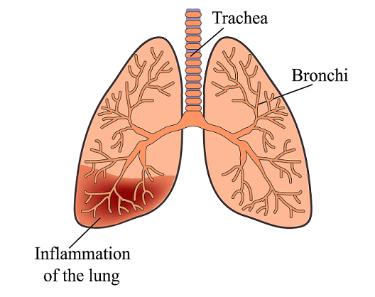 What Is The Exact Treatment of Pneumonia?